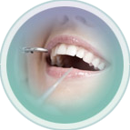 Profilaxia Dental